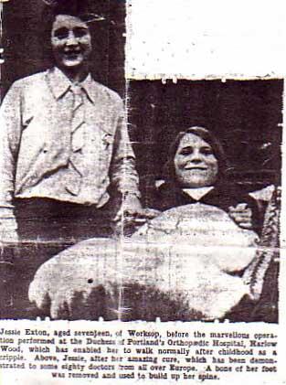 Pioneering Surgery at Harlow Wood Hospital